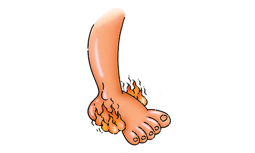 Горящие ноги